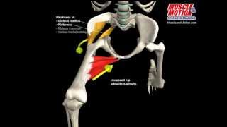 What Happens to a Knee Valgus Collapse During a Squat?