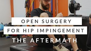 Open hip surgery for FAI - the aftermath and recovery from hip impingement