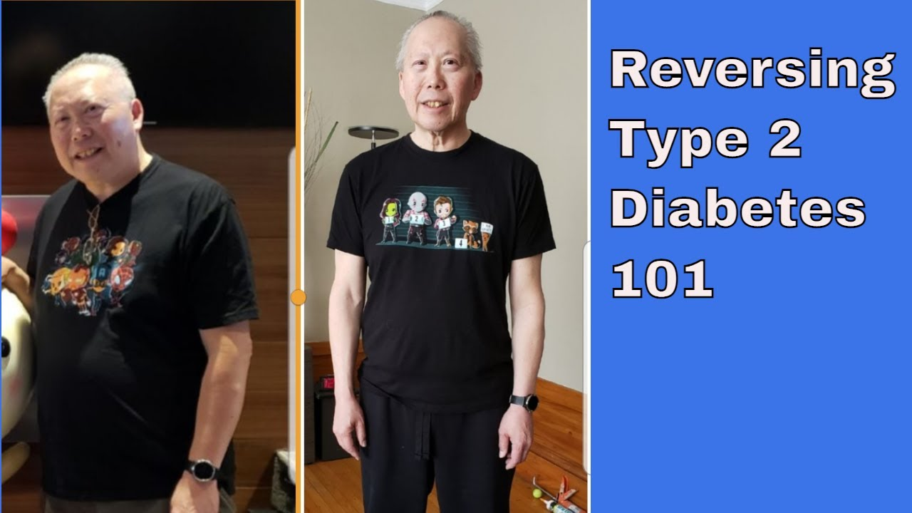 Reverse Type 2 Diabetes Naturally (The Basics) | Jason Fung