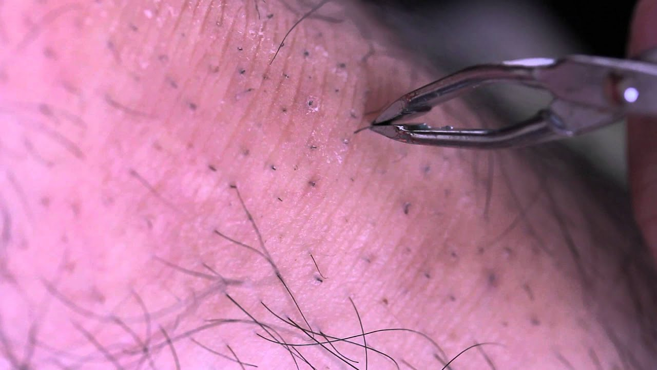 Displaying 18> Images For - Infected Ingrown Hairs On Pubic Area...