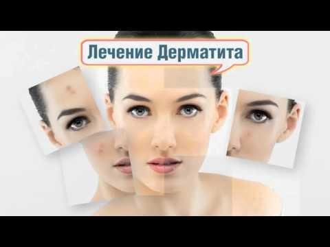 Кожные заболевания: фото и описание