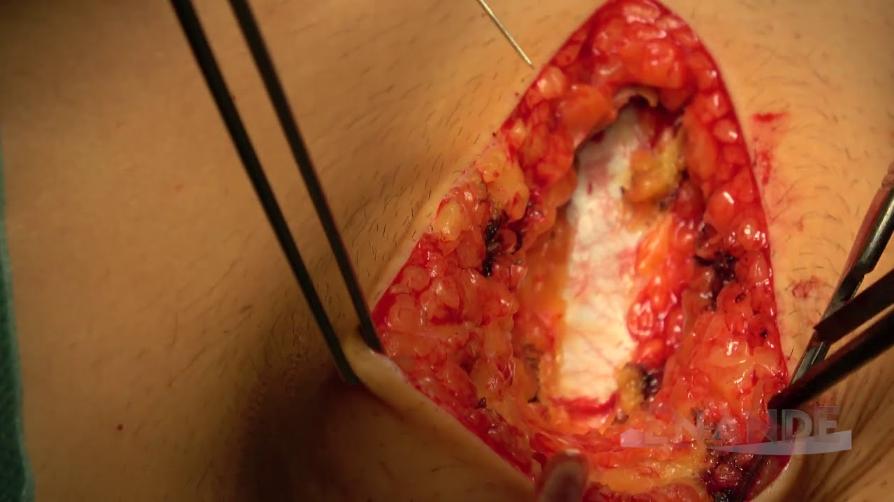 Download 2-Level Lumbar Disc Replacement with M6 (FULL) (L4-5/L5-S1 ADR/TDR) Surgery with Enande Team