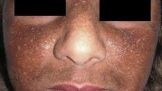 Effacer les Tâches depigmentations/Hydroquinone à taches de la peau; Et le traitement hyperchromies
