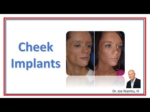 Cheek Implants: A Small Procedure With Powerful Results