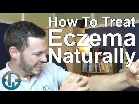 The Straightforward Factor That Can Help Childhood Eczema