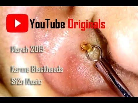 Blackheads Removal Youtube Originals - Latest 2019 March