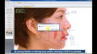 Cephalometric Analysis Software : V-Ceph