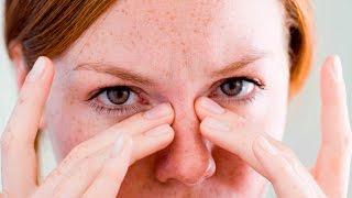 Массаж и гимнастика для глаз при глаукоме.
