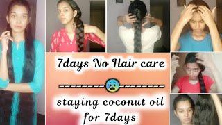 😰 No Hair care for 7days🤔 finally i got dandruff,🥺 split-ends, hairfall 🤣
