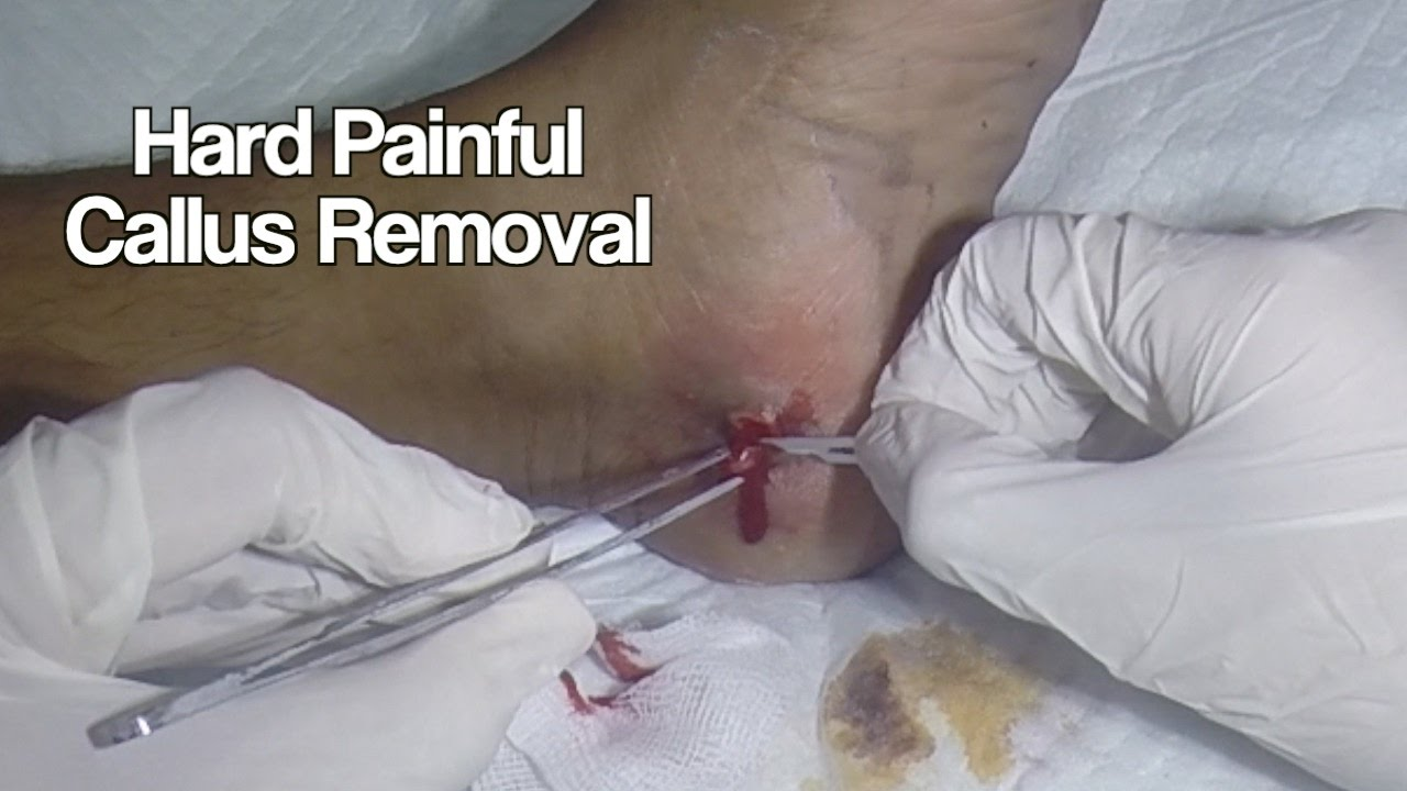 Removal of Hard Painful Callus in the Foot  YouTube