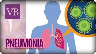 Por definição estase de pneumonia médica
