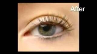Anesis Beauty Spa - Nouveau lashes Thumbnail