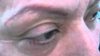 Eyebrows  Permanent Makeup March 9th 2012 Thumbnail