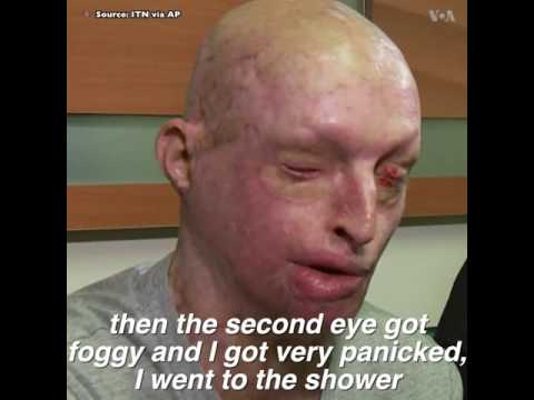 UK acid attack victim speaks about his experience