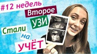 12 неделя беременности – ощущения, развитие плода, фото, узи, видео