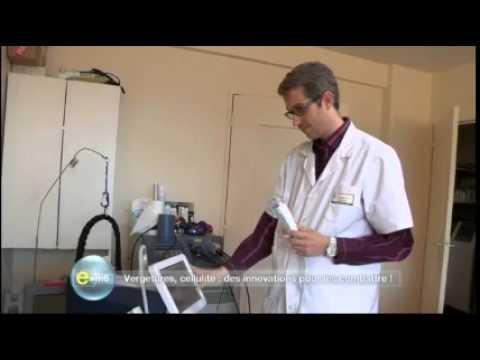 dr michael naouri dermatologue traitement des vergetures e m6 chaine m6 youtube. Black Bedroom Furniture Sets. Home Design Ideas