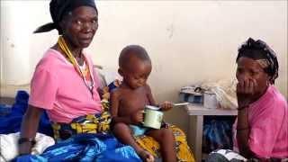 Malnutrition. Africa. Angola. Ethiopia. Severe Acute Malnutrition