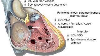 Hipertensi Paru/Pulmonal adalah tekanan darah tinggi di pembuluh darah paru ke jantung. More info pl.