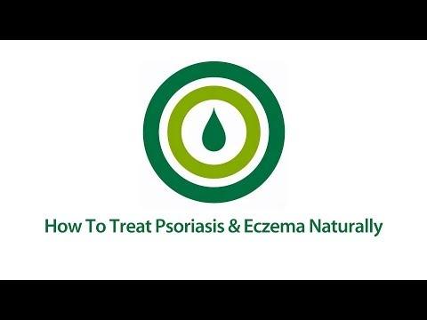 How to Treat Psoriasis and Eczema | Natural Psoriasis & Eczema Treatment Video