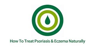 How to Treat Psoriasis and Eczema | Natural Psoriasis & Eczema Treatment Video Thumbnail