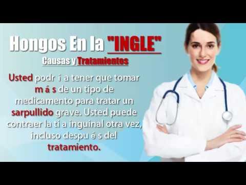 hongos-en-la-ingle-causas-y-tratamientos-doctora-valeria