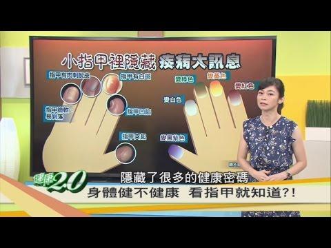 指甲隱藏疾病大訊息!身體健不健康 看指甲就知道 健康2.0 20160827(完整版)
