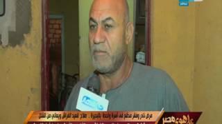 على هوى مصر - مرض نادر وفقر مدقع في اسرة واحدة بالبحيرة!
