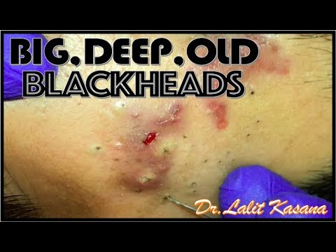 BIG DEEP OLD BLACKHEADS REMOVAL BY DR.LALIT KASANA (08/05/2019)
