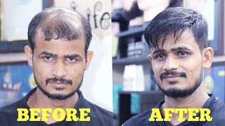 best hair patch [wig] video in india stylish hair cut by master RIZY 9582581323