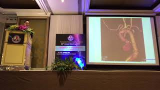 STST2018 Plenary lecture Part 1~ Which do you choose? thumbnail