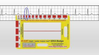 EKG Concepts - How To Use The EKG Badge