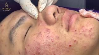 #57 #loannguyen_PROFESSIONAL ACNE TREATMENT_ Tratamiento profesional para el acné