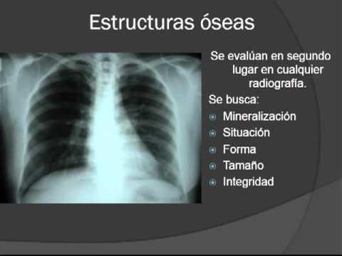 Fundamentos para Interpretación en Radiología General Simple - YouTube