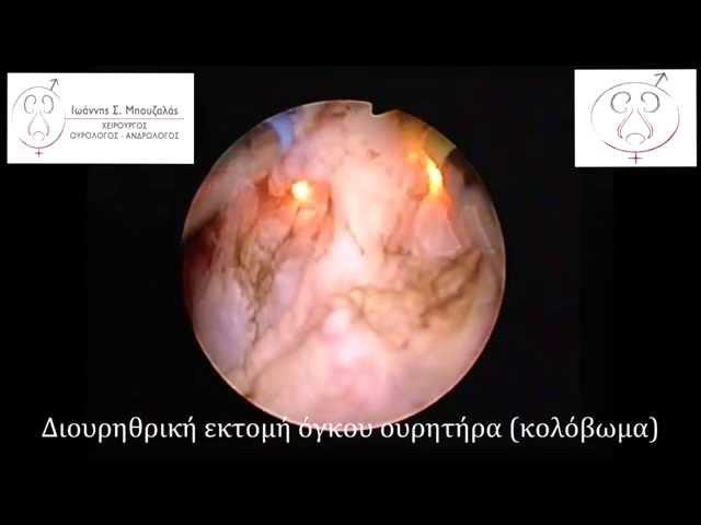 Διουρηθρική εκτομή όγκου κύστεως-ουρητήρα