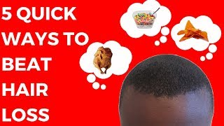 5 Quick Ways Black Men Can Beat Hair Loss