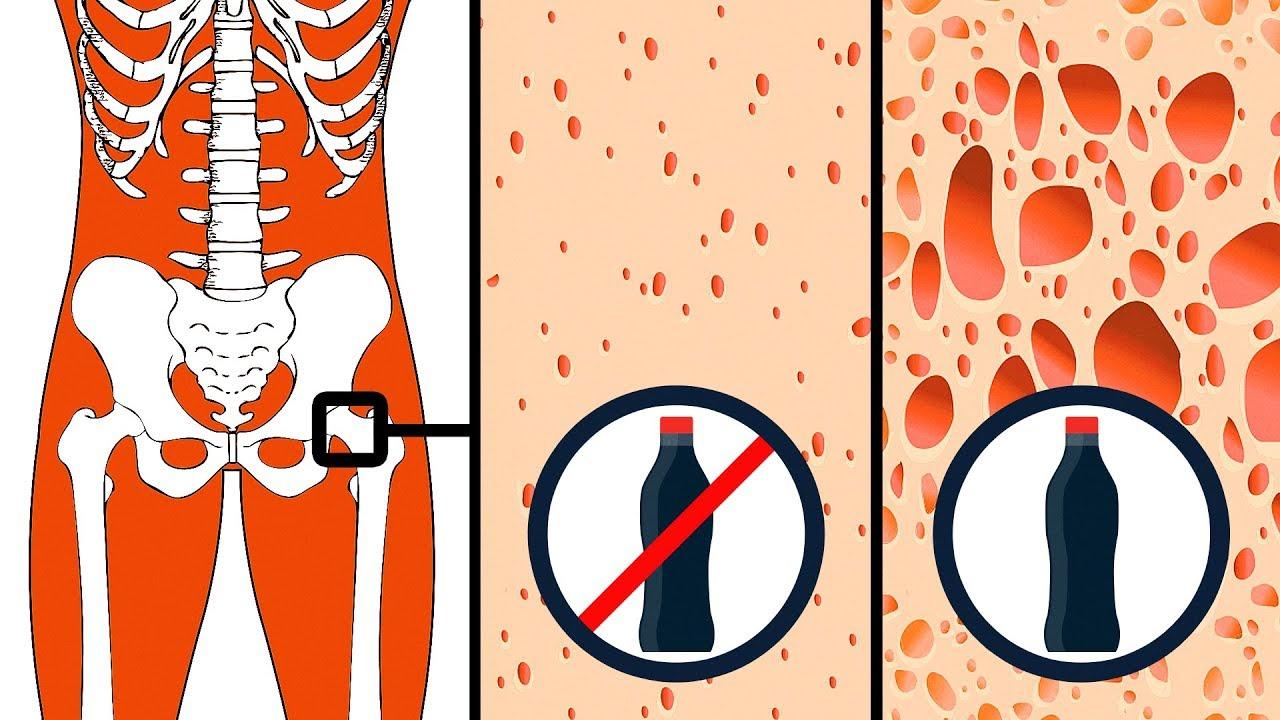 Eruzioni Cutanee Cause Rimedi Casalinghi Trattamento E Altro 2021