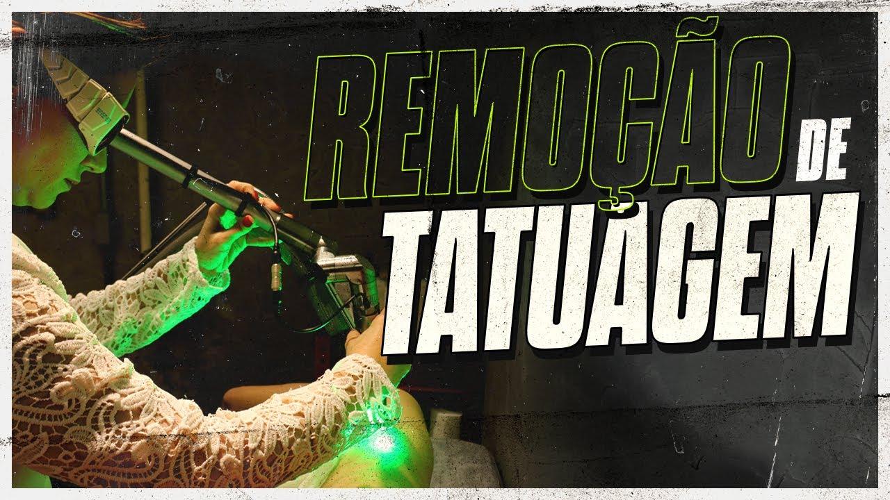 Processo De Remoção De Tatuagem Antes E Depois