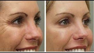 Fique 10 Dias Mais Jovem a Cada 1 Com Esta Máscara Efeito Tensor Para Rosto