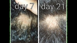 My Hair Loss Story- Bald Spot!!!-Transitioning Hair(Natural Hair)