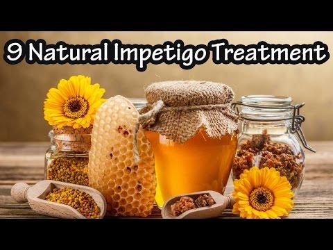 9 Natural Impetigo Treatments