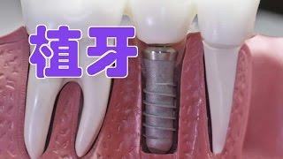 植牙是什么?什么样的人可j'n以做植牙手术?对于牙齿缺失的患者植牙有什...
