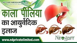 what is the treatment of hepatitis kala piliya in ayurveda at nirogam?
