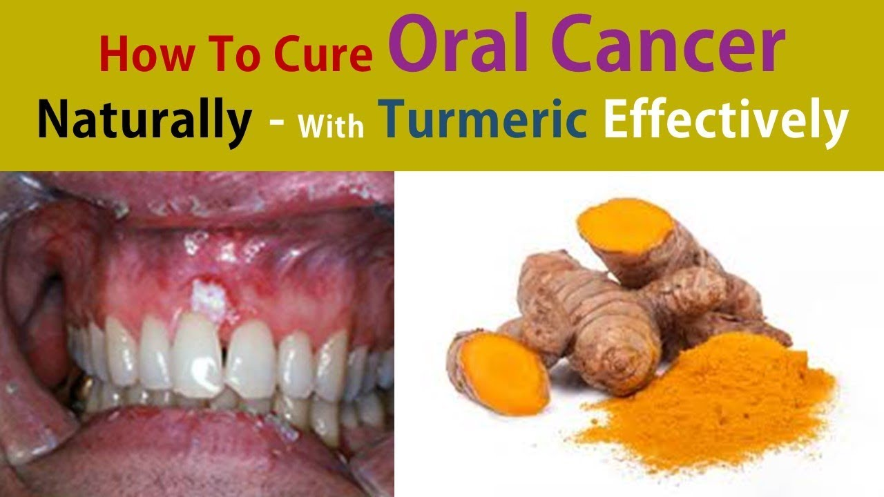 How to Treat Oral Cancer pictures