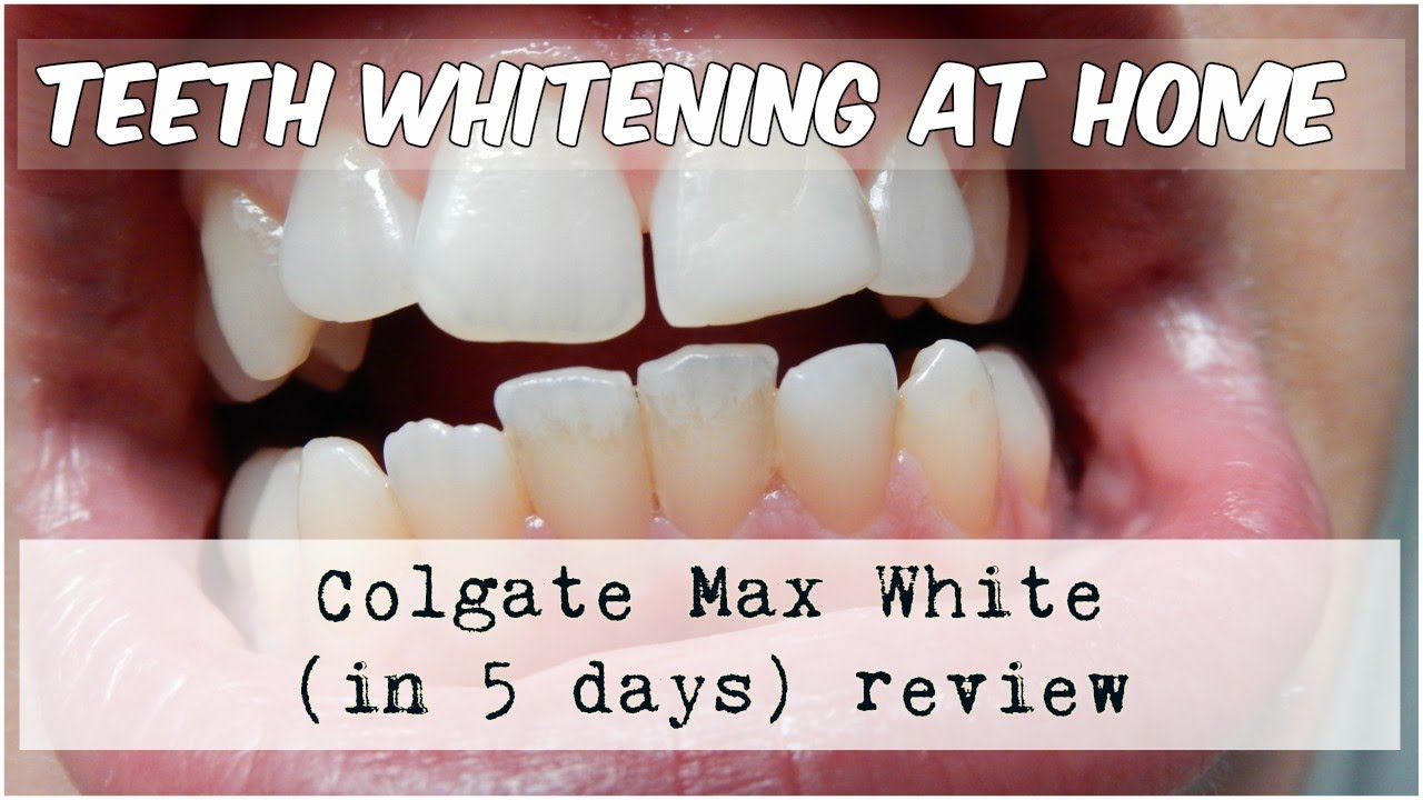 Teeth Whitening Colgate Max White Review Youtube