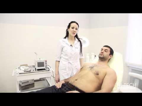Кератомы - что это такое? Лечение кератомы кожи