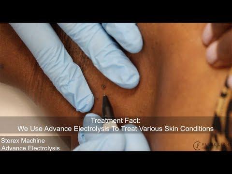 Skin Tag (Electrolysis) Procedure at Pulse Light Clinic London