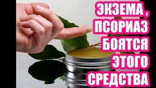 ЭТОГО СРЕДСТВА БОИТСЯ ПСОРИАЗ И ЭКЗЕМА ,  лечение народный метод ,  # топ5хайп