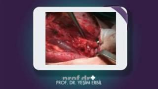 Boyunda nüks lenf metastazı (tiroid kanseri)