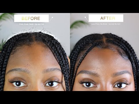 HOW TO WASH AND DRY ITCHY SCALP WITH KNOTLESS BOX BRAIDS FAST AND EASY WITH NO FRIZZ