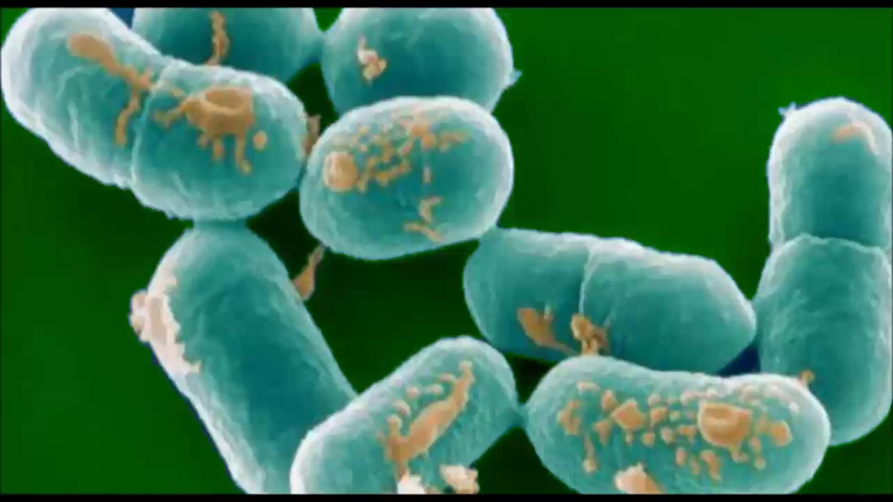 research topic listeria monocytogenes haemophilus influenzae and mycobacterium ulcerans Research topic: listeria monocytogenes, haemophilus influenzae, and mycobacterium ulcerans part 1: listeria monocytogenes listeria monocytogenes is a bacterium that is originated in food and can cause the serious illness of listeriosis.
